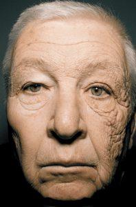 sun-damage-face-120604