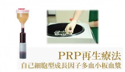 PRP再生療法