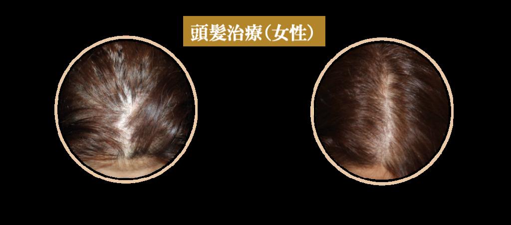 症例(女性頭髪治療)