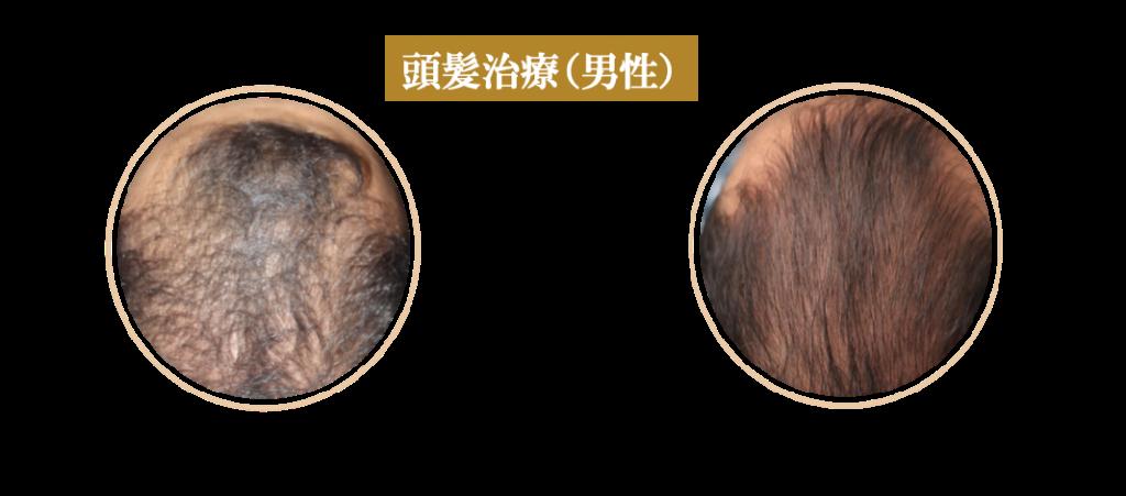 症例(男性頭髪治療)