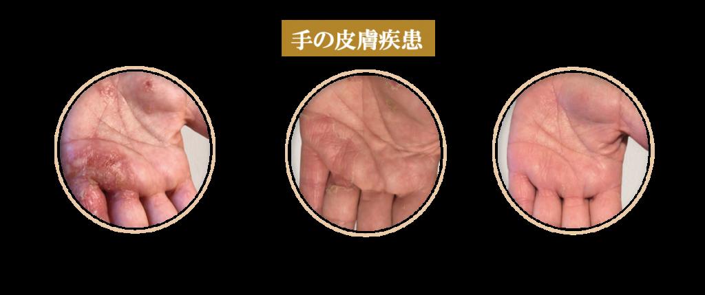 症例(手の皮膚疾患)