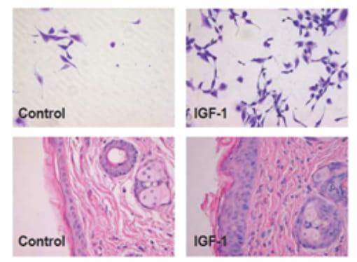 臍帯血再生因子HS-CM100 SFの効果
